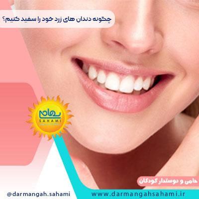 چگونه دندان های زرد خود را سفید کنیم؟